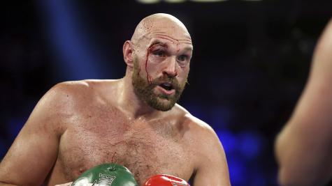 Fury toasts surgeons after having 50 stitches in eye wound