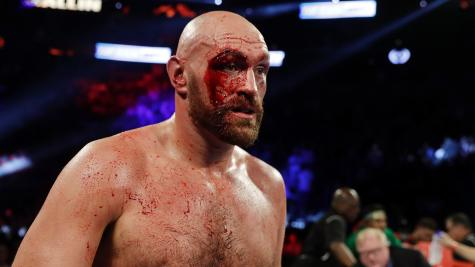 Fury's reputation in USA not affected by Wallin performance, says Warren