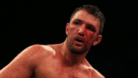 Disaster strikes Joseph Parker vs Hughie Fury